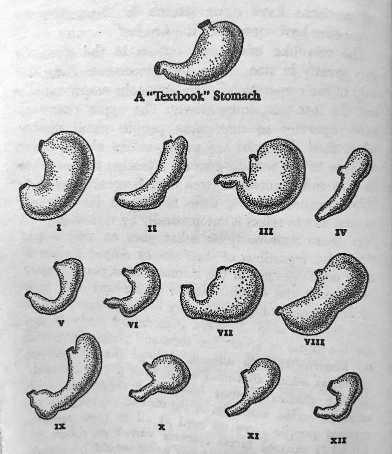 stomach shapes and sizes