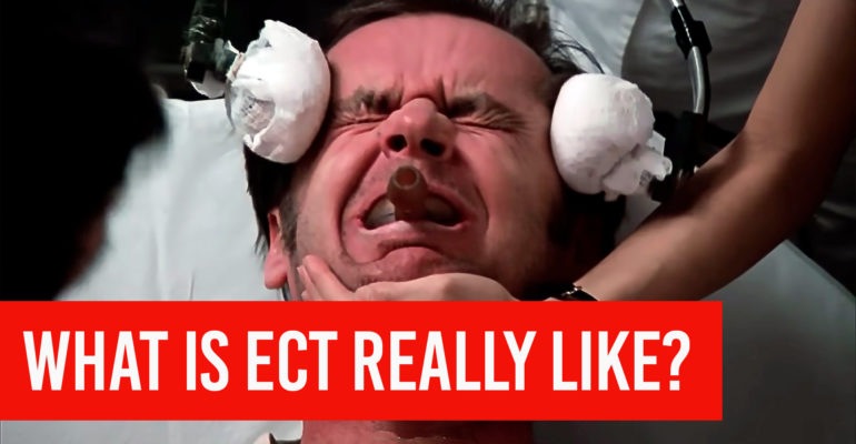 electroconvulsive therapy ect what is it